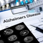 How State-of-the-Art Imaging Studies are Detecting Alzheimer's Disease Earlier