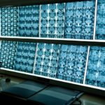 New Advances in MRI Technology
